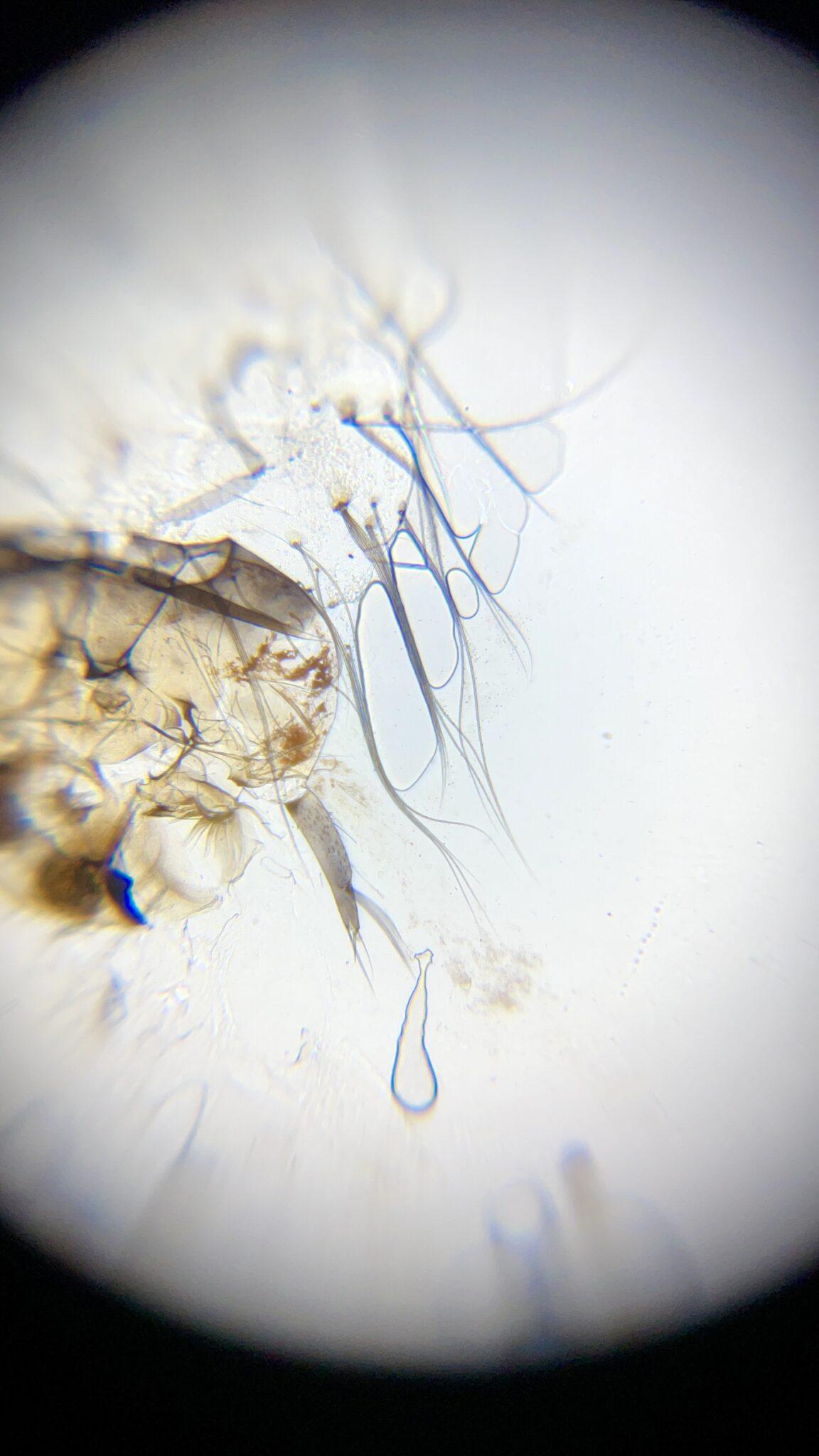 Mosquito Larvae Microscope
